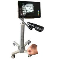 Cheap Infrared Camera Imaging Infrared Vein Locating Device Safety With No Laser For Hospital and Clinic for sale