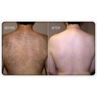 Cheap Recommendations of Laser Hair Removal Treatment for sale