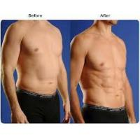 Cheap Laser Assisted Lipolysis for sale