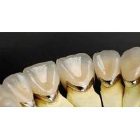 Dental Porcelain Fused to Metal Pfm Co-Cr Crow and Bridge ...