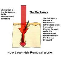 Cheap The Principle of Laser Hair Removal for sale