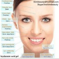 Hyaluronic Acid Injections Side Effects Images Images Of
