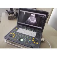 Cheap Portable Pregnancy Ultrasound Scanner with Abdominal Convex Transvaginal Transducers for sale