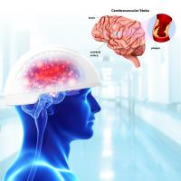 China 810nm Neurofeedback Therapy Machine Transcranial Magnetic Brain Stimulation Infrared on sale