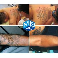 Tattoo removal q switched nd yag laser machine for skin for How much is a laser tattoo removal machine