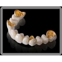 Cheap Captek Gold Dental Crown Lab On All Teeth Good Biologycial Strong Restoration for sale