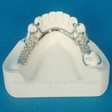 China dental framework/metal denture/metal framework on sale