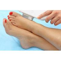 Cheap Diode laser is suitable for toe hair removal for sale