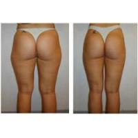 Cheap recovery after laser lipolysis for sale