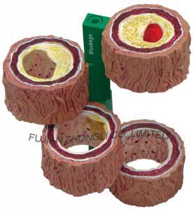 Artery Model,anatomy model