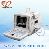 China portable ultrasound scanner better than Mindray in China medical device market on sale