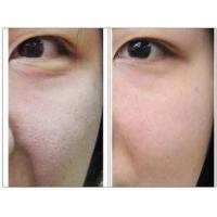 Buy cheap Cosmetic HAAnti Aging injection 5ml vial No overcorrection for Neck from Wholesalers