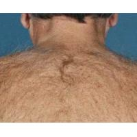 Cheap What causes excessive hair and the ways to remove it for sale