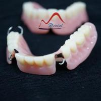 Buy cheap Acrylic Removable Partial Denture from wholesalers