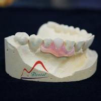 Buy cheap Valplast And TCS Flexible Partial Denture from wholesalers