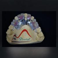 Buy cheap Fit CoCr Casting Partial Denture from wholesalers