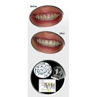 Cheap Z-Sthetic featuring Zeno Zirconia for sale